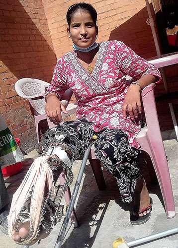 woman in wheelchair with badly broken leg